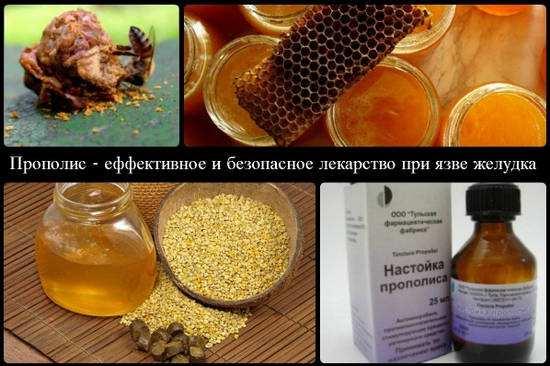 Lechenie-jazvy-propolisom