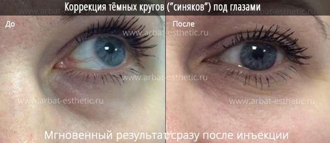Процедуры от темных кругов под глазами