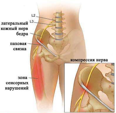 Болезнь Рота - симптомы