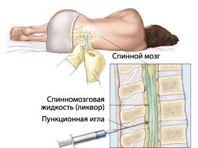 откуда берут пункцию костного мозга