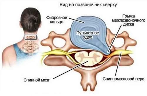 Причины развития шейной грыжи